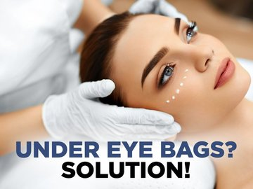Under Eye Bags? SOLUTION!